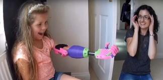 dievcatko Isabelle dostalo novu ruku z 3D tlaciarne fb