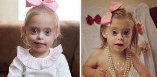 2-ročné dievčatko s Downovým syndrómom sa stalo modelkou vďaka svojmu krásnemu úsmevu